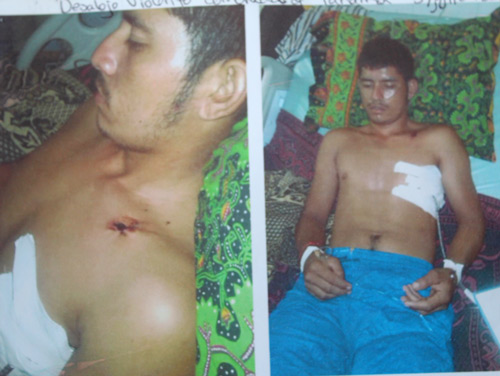 Photos supplied by the Panamá community documenting injuries suffered by peasants when Honduran soldiers expelled them from an occupation of Dinant's Paso Aguán plantation in July 2014