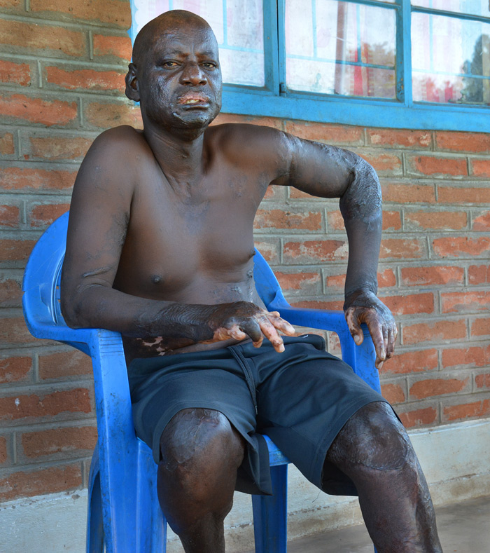 The fingers on Caldwell Sichinga's right hand were fused into a mitt by an explosion at a mining site